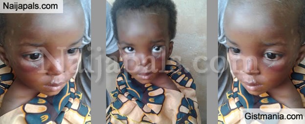 Heartbreaking Photos Of 3yrs Old Child Tagged A Witch And Brutalized By Her Own Parents