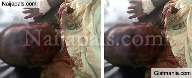 Justice For 5yrs Old Girl Who Was Brutally Attacked By Landlords Dog In Lagos (Graphic)