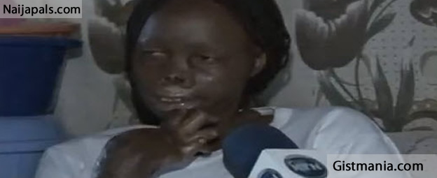 Man Burns His Wife With Acid For Being Too Beautiful (photo)