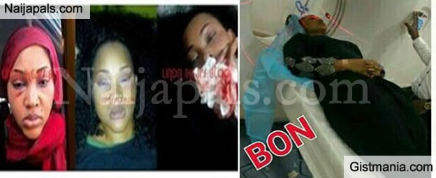 Mercy Aigbe Pictured Undergoing CT Scan, As The Report Shows She Had A Fractured Skull - Photos