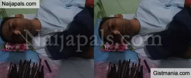 Unbelievable! Doctors Remove 33 Sharp Objects From The Stomach Of A 30- Year-Old Man