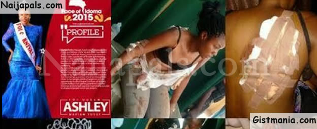 PHOTOS: Beauty Queen, Ashley Mariam Yusuf Survives A Ghastly Road Accident