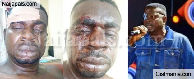 Veteran Musician, Baba Fryo Battered & Assaulted By 'Unknown' Soldiers In Lagos, Shares Photos