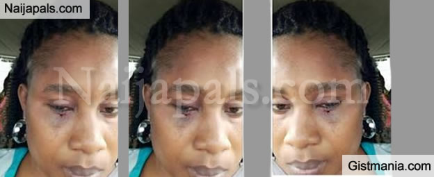 HELP! My Husband Beats Me A Lot Even Shortly After Child Birth Through CS - Battered Woman (Photo)