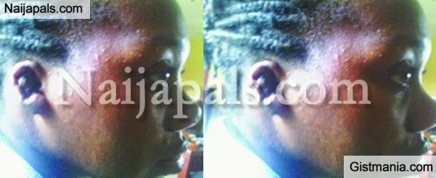 Boss Bites Off Employee's Ear Over Salary In Lagos