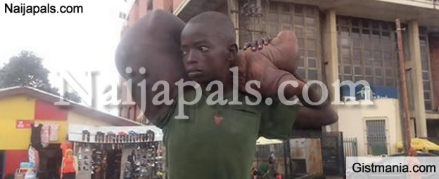 Boy With The Most Huge and Grotesque Arm Spotted Begging for Alms in Ikeja (PHOTOS)