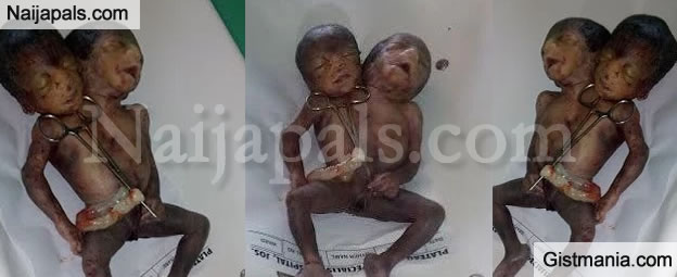 Disturbing Photos Of A Conjoined Twins Delivered n A Specialist Hospital In Jos