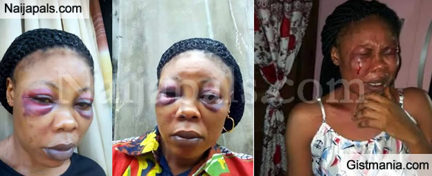 SAD!! See What A Man Did To His Wife After A Domestic Argument (Photos)