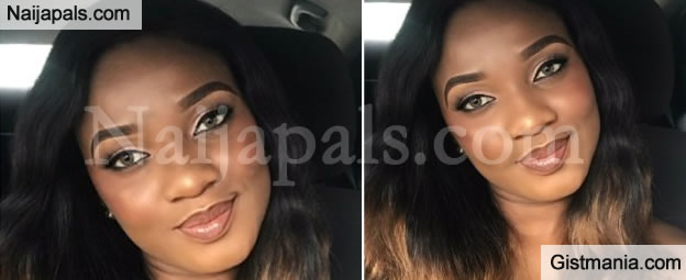 Nigerian Lady, Ekprimma Calls Out Uyo Doctor Who Molested Her When She Was Recovering From Surgery