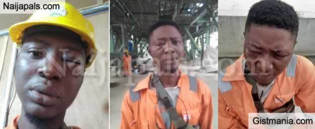 Man Left With Swollen Eye After Being Assaulted By Soldier At Dangote Fertilizer Plant In Lagos