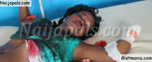 Man Cuts Off his Wife's Hand for Being Unfaithful (GRAPHIC PHOTOS)