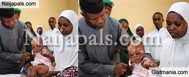 Heartbreaking: VP Osinbajo Visits Baby Girl Disfigured During Boko Haram Attack [Photo]
