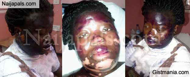 Scorned Woman Scalds Her Pregnant Neighbour With hot Water During An Argument In Lagos