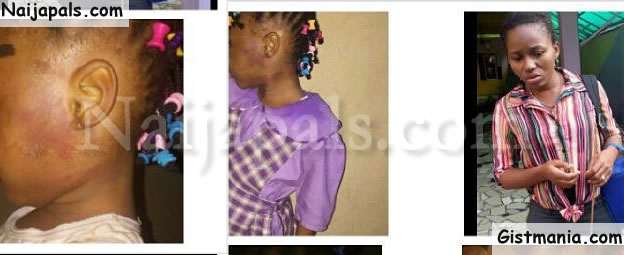 PHOTOS: Teacher Leaves 4-Year-old Girl In Severe Pains After Subjecting Her To Corporal Punishment