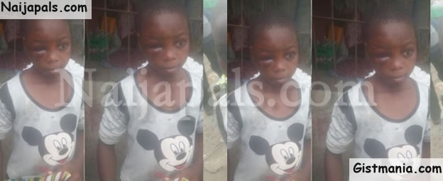 Wicked Uncle Batters 11-Year-Old Girl In Lagos For Revealing Their Family Problems To Outsiders