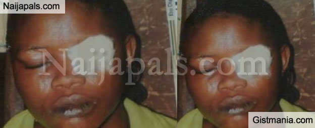 OMG! Woman Bites Off Friends Eyelid For Refusing To Pay Her Debt In Lagos - Photos